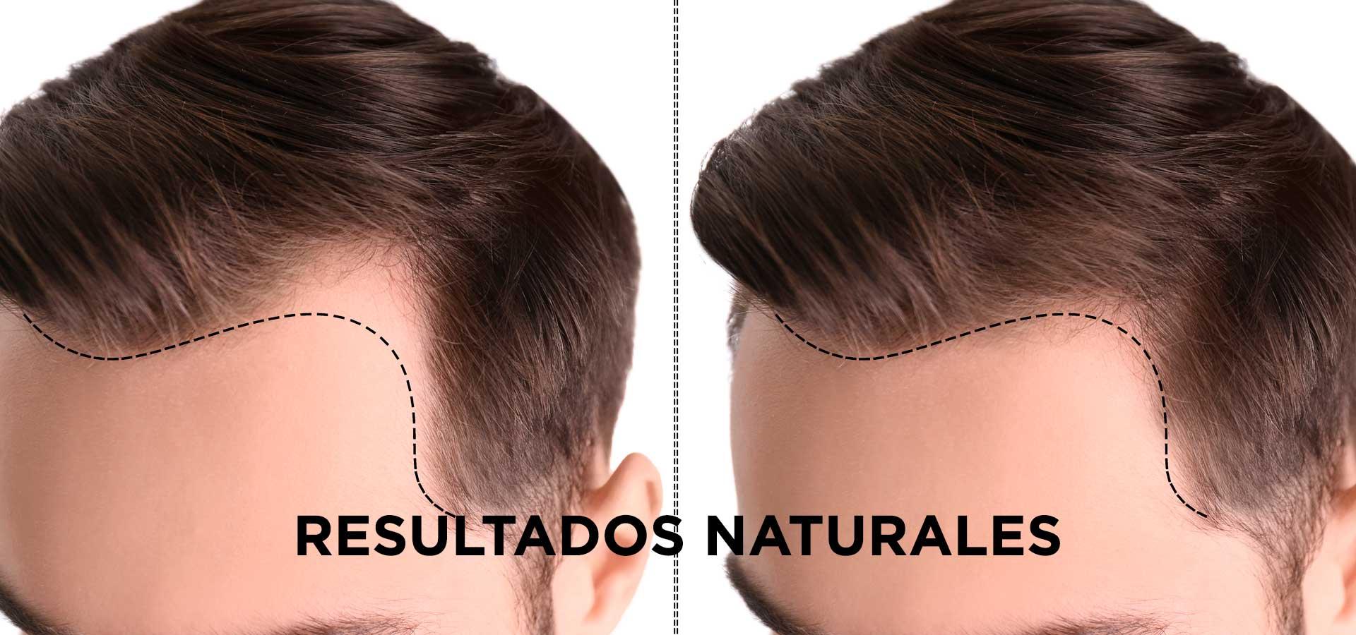 Implante Capilar Antes Después Élite Medical Madrid