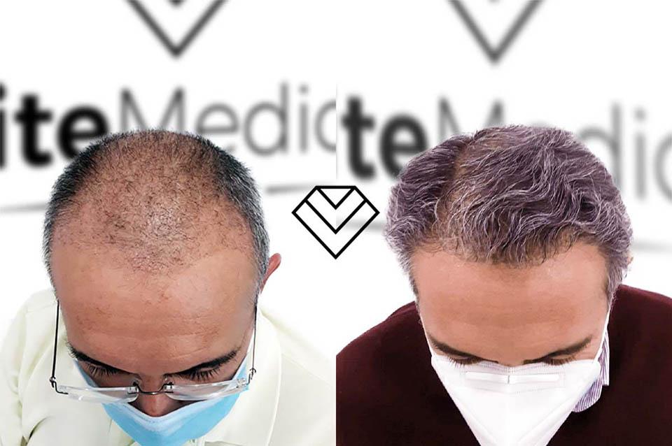 Antes y Después del Implante Capilar FUE Zafiro en Élite Medical Madrid