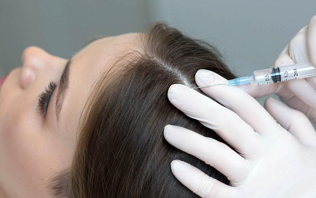 Minoxidil oral