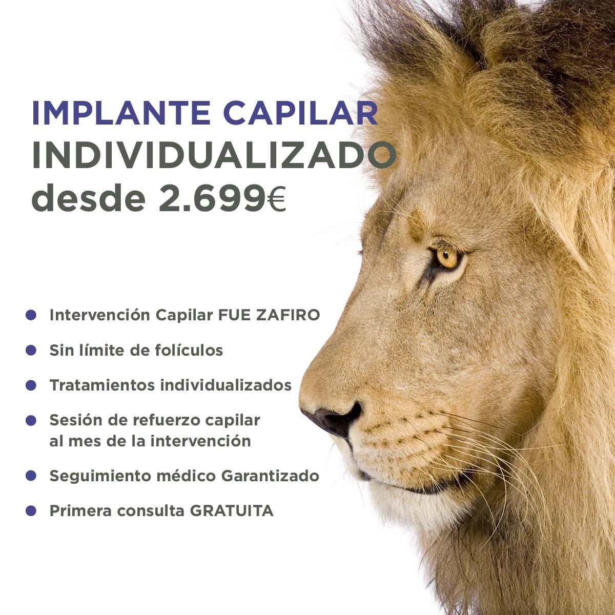 Implante Capilar FUE Zafiro Élite Medical Madrid