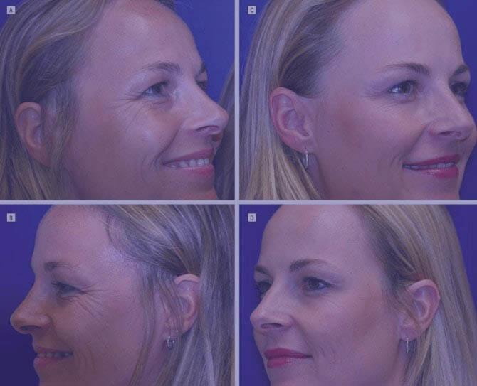 Rejuvenecimiento facial en Élite Medical Madrid
